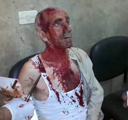 kobane-june25